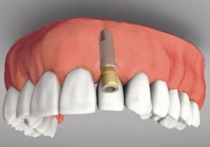 Bluetooth-имплантат