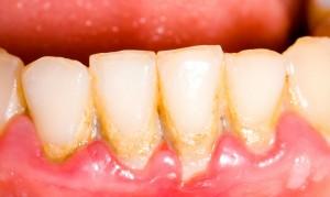 Зубной налет может быть полезен