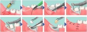 Симптомы и признаки прорезывания зубов мудрости