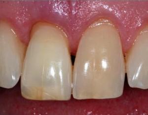 Эндоотбеливание в стоматологии