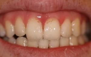 Причины и симптомы эрозии зубов