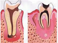 Зубная гранулема в стоматологии