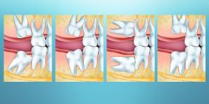 Положение зубов мудрости и ретенция