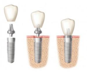 Какие виды абатментов в стоматологии бывают?