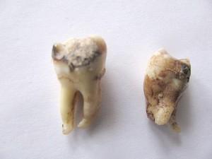 Заболевание зубов мудрости