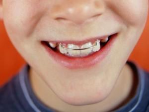 Пластинки на зубы детям