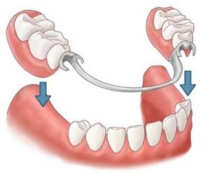 Какие бывают виды зубных протезов?