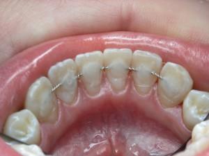 Укрепить зубной ряд шинированием