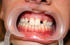 Убрать диастемы и тремы между зубами