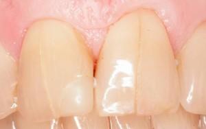 трещина на зубе Сумы