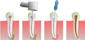 Показания для удаления зубного нерва и срок службы зуба