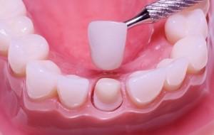 зубные коронки Сумы