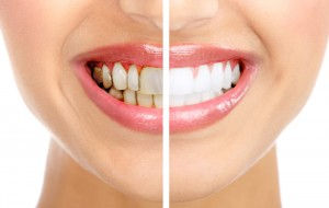 Зубной камень. Информационная статья