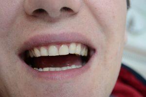 Изменена форма и цвет зуба