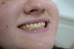 Коронка преднего зуба