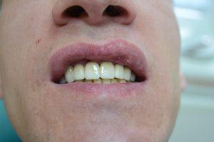 Новые зубы в полости рта
