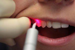 Чистка зубов лазером Сумы