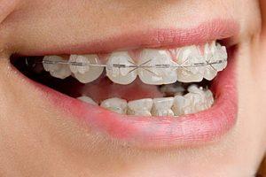 Почему нужно ровнять зубы