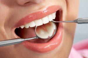kak-ne-dopustit-razrushenie-zubov