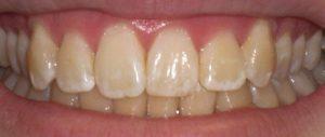 pochemu-zhelteyut-zubyi
