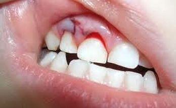 Что делать если ребенок ударился зубом и он шатается