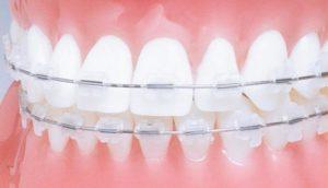Эстетическая керамика в стоматологии