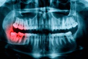 Осложнения прорезывания зуба мудрости
