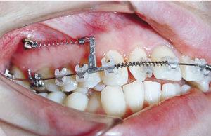 Применение винтов в практике ортодонта