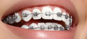 Что необходимо перед ортодонтическим лечением?
