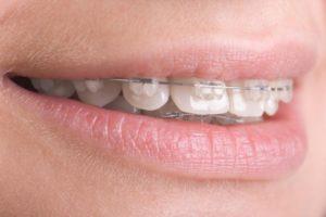 Кривые зубы и неправильный прикус