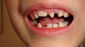 Что происходит при развитии аномалий зубов?