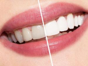 Правила поведения пациентов в стоматологии