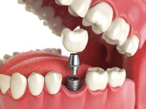 Имплантация зубов 3D