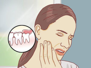 Последствия ретенции зубов