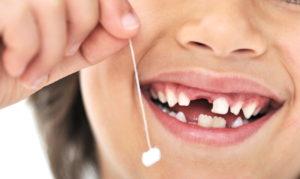Десять фактов о молочных зубах