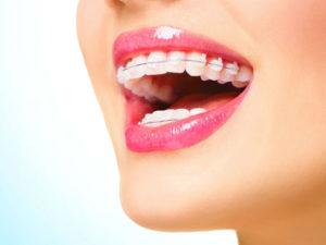 Уход за зубами после установки пломбы