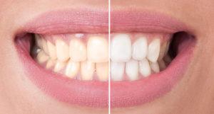 Уход за отбеленными зубами