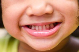 Как можно лечить кариес у детей?