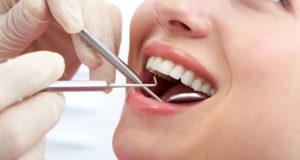 Удаление зубов мудрости в стоматологии
