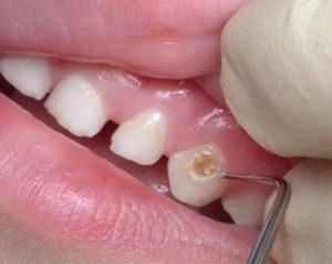 Почему на молочных зубах кариес?