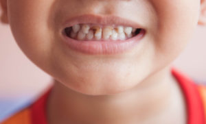 В чем основная причина детского кариеса?