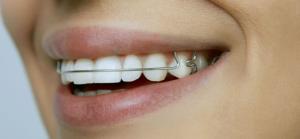Какие пластинки на зубы бывают?