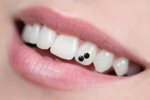 Установка скайсов в стоматологии