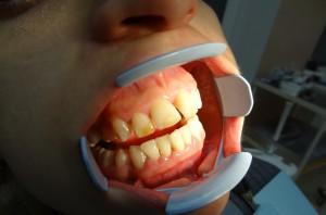 2. Крупный размер зубов , диастемы и тремы.