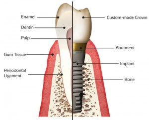 Dental prosthesis in Sumy city