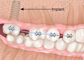 Orthodontic implants