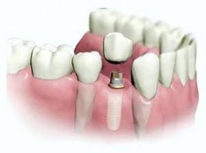 Що таке імплантація зубів