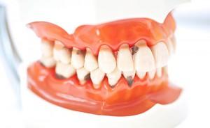 Виды искусственных зубов