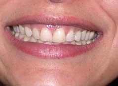 Шинирування зубів