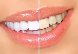 Технологія відбілювання зубів